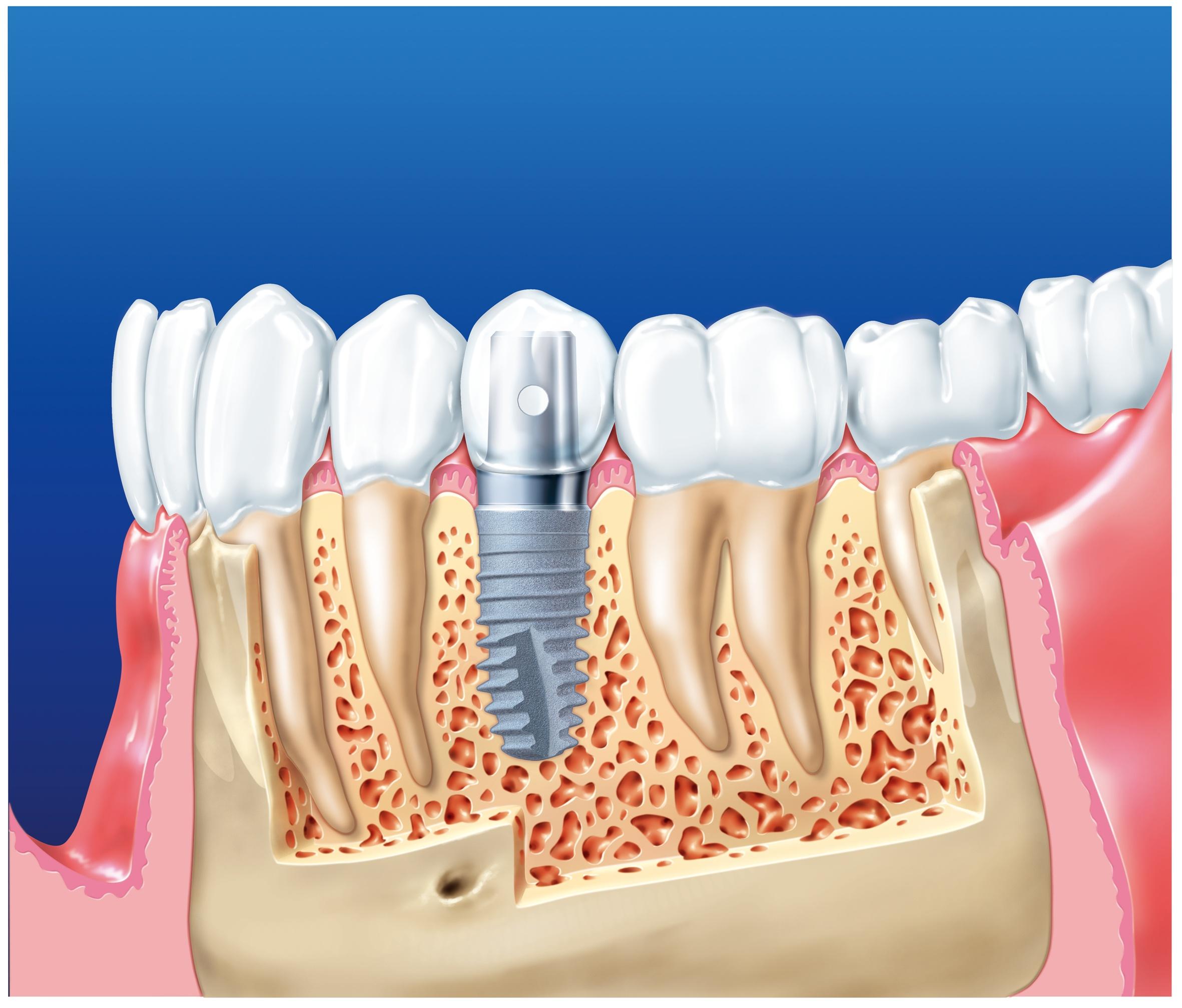 implant xsg 1 1