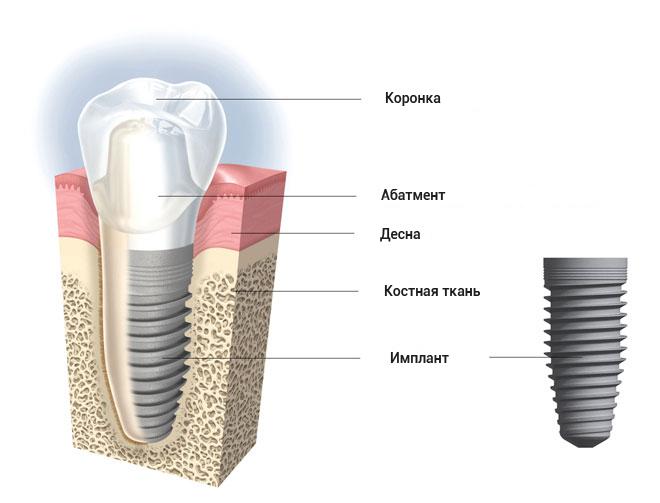 implant info